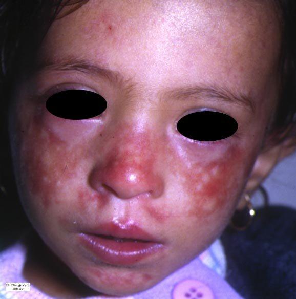 Rothmund-Thomson Syndrome: Background, Epidemiology